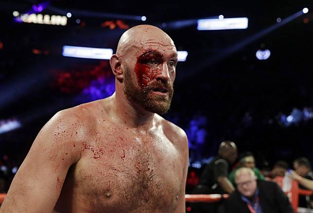Tyson Fury survives huge scare to claim points win over Otto Wallin in bloody brawl