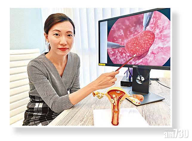 子宮息肉、肌瘤可影響生育