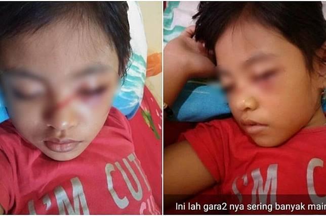 Mata anak ini bengkak hingga berdarah karena kecanduan gadget