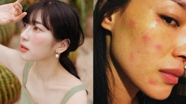 皮膚敏感面部紅腫癢癢 3 招急救秘訣 KO 敏感肌症狀