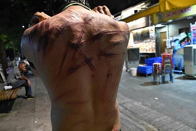 有男子背部受傷。