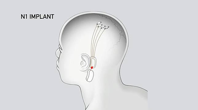 สรุป Neuralink: แผนของ อีลอน มัสก์ ที่จะทำให้คนกับคอมพิวเตอร์อยู่ร่วมกัน