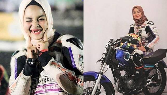 Berawal dari Behel, Gigi Pembalap Cantik ini Ompong dan Ternyata Kanker!