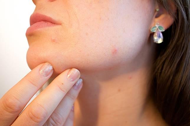 ▲不是所有青春痘類型都適用痘痘貼。(示意圖/取自 Pixabay )