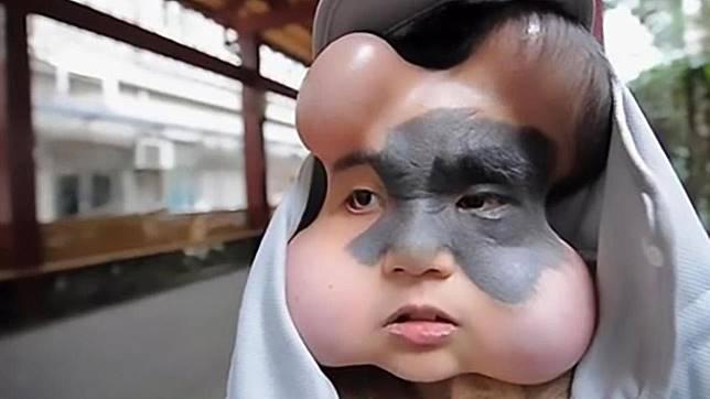 Menyayat hati, ternyata begini cerita kehidupan wanita yang memiliki wajah seperti balon. (Foto: The Sun)