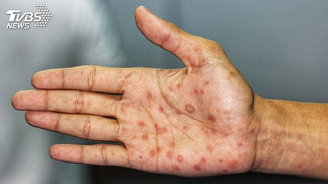 感染梅毒示意圖。圖/TVBS