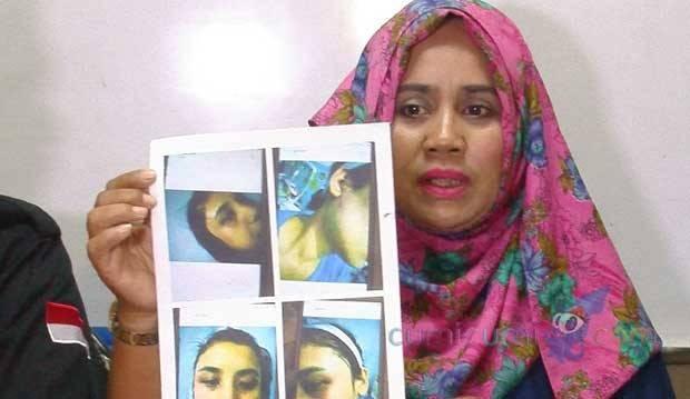 Sadis! Kakak Chelsea Olivia Diduga Pukuli Istri Hingga Wajahnya Miring