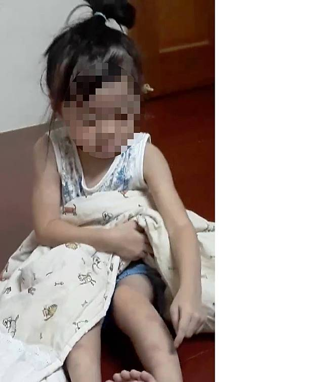 台北市1名34歲女子不堪丈夫長期家暴凌虐,父親節帶著兩名幼小的女兒離家,小女兒指著左腿的傷痕說「爸爸說要殺死我」。記者何烱榮/攝影