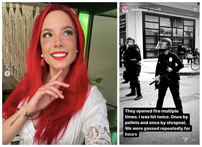 ▲海爾希(左圖)上街示威遊行,竟被武裝警察丟催淚彈以及遭橡膠彈射擊。(圖/翻攝海爾希IG)