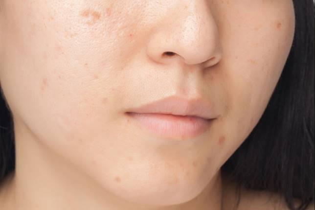 5 Cara Menghilangkan Flek Hitam Di Wajah Secara Alami