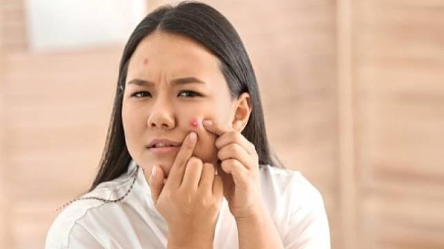 Ilustrasi jerawat saat menstruasi. (Shutterstock)