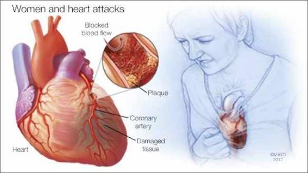 Ciri-Ciri Umum Serangan Jantung yang Wajib Anda Waspadai