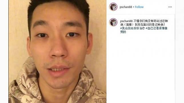Chan Peng Soon menderita bell's palsy (Instagram/@pschan88)