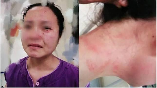 廣州1名護理師要幫1名確診新冠肺炎的外籍病患抽血時,遭對方一陣狂毆還咬傷臉部。(圖/翻攝自京報網)