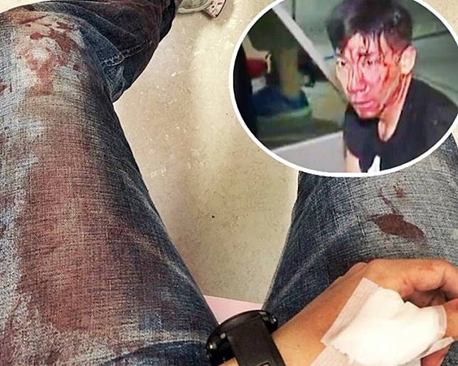 柳俊江自拍染血牛仔褲。小圖為柳俊江血流披面。