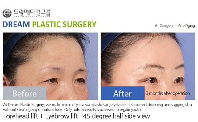 Dream Plastic Surgery