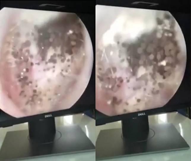 ▲越南一名男子耳朵癢又痛,檢查後才發現耳道裡已經變成「蘑菇森林」。(圖/翻攝自《每日郵報》)