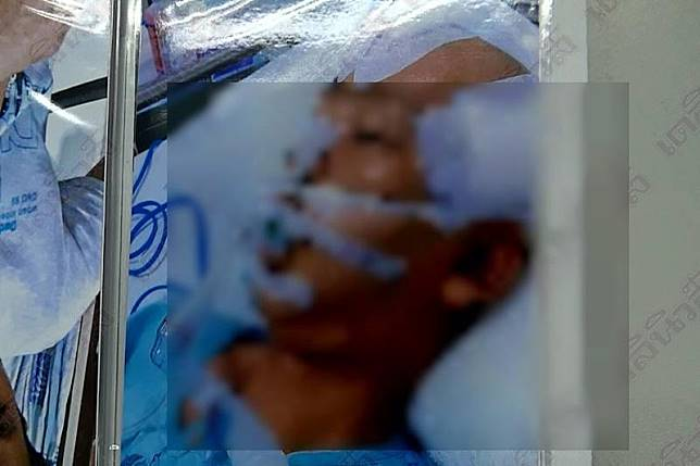 ร้องหนุ่มเมาขับถูกจับติดคุก ไม่กี่วัน'โคม่า'ถูกหิ้วส่งหมอ