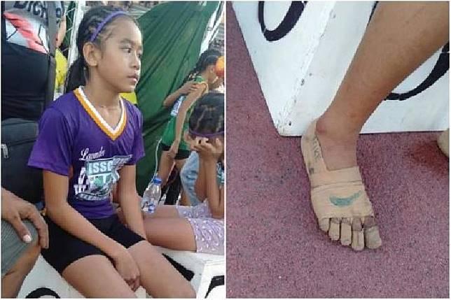 Kisah Altet Lari di Filipina, Bertanding Tanpa Sepatu