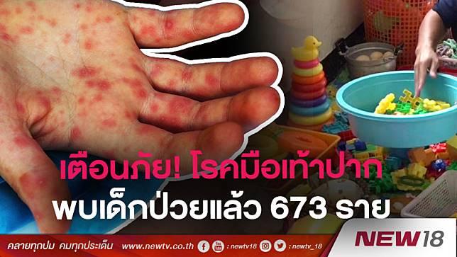 เตือนภัย! โรคมือเท้าปาก พบเด็กป่วยแล้ว 673 ราย